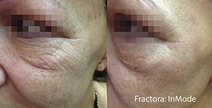 Example of before and after anti-aging cheek results from a Fractora skin treatment