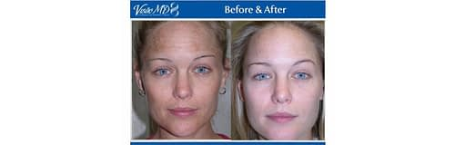 Visao Peel logo and before and after treatment images