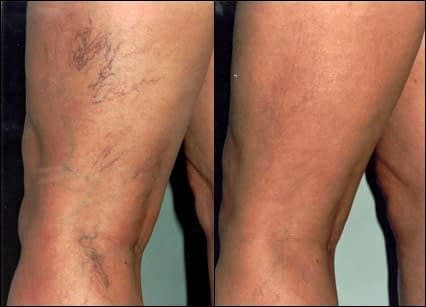 Example of before and after treatment to remove spider veins