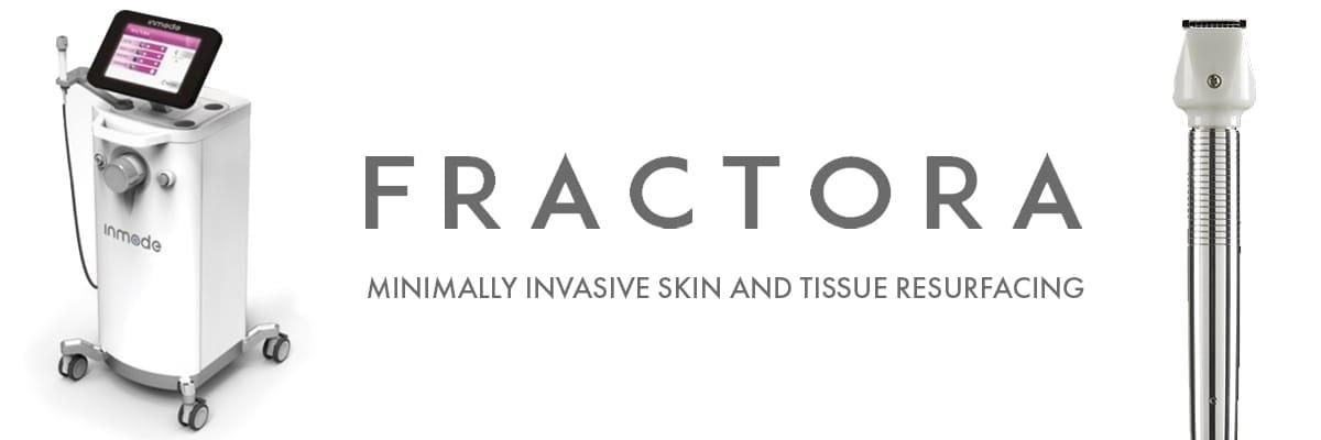 Fractora featured image