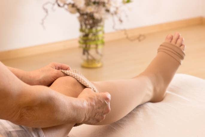 A woman pulling on a beige-colored compression sock as a recommended treatment for varicose veins