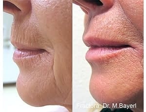Example of before and after anti-aging lipline results from a Fractora skin treatment